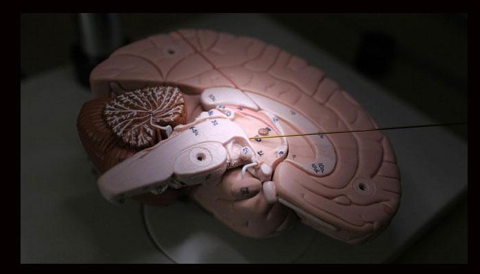 Aleva neurotherapics